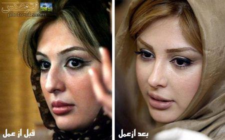 نیوشا ضیغمی قبل و بعد عمل amal bini niusha